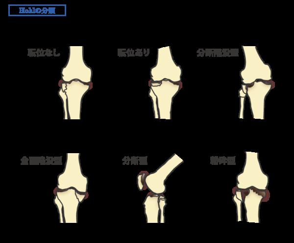 高原 骨折 脛骨 左
